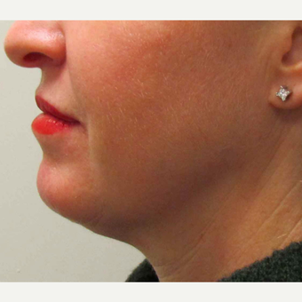 Chin Implant for this 45 Year Old Woman after 3005681