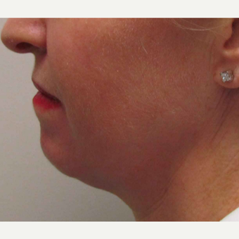 Chin Implant for this 45 Year Old Woman before 3005681