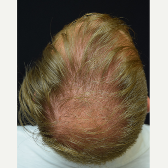 25-34 year old man treated with Hair Transplant before 3217857