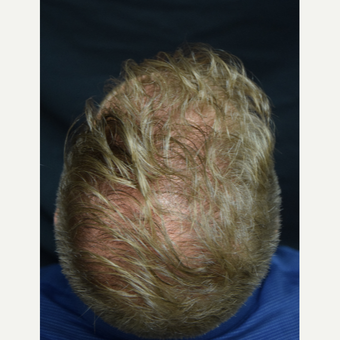 25-34 year old man treated with Hair Transplant after 3217857