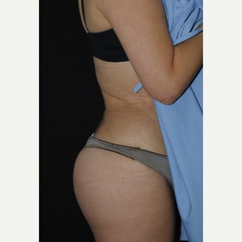 35-44 year old woman treated with Butt Augmentation after 1869674