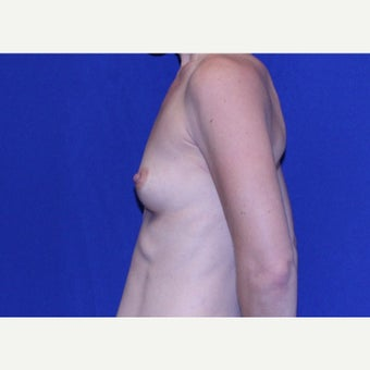 36 year old woman treated with Breast Augmentation before 2034748