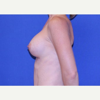 36 year old woman treated with Breast Augmentation after 2034748