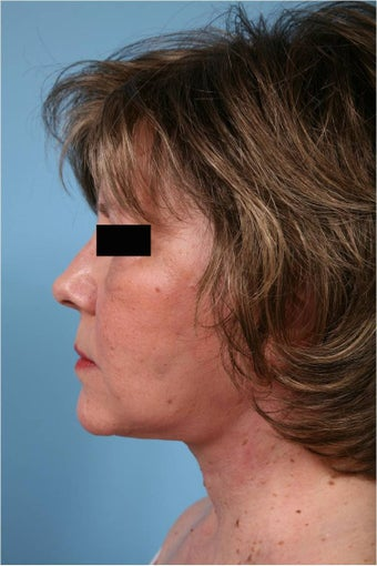Neck lift after 553648