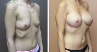 35-44 year old woman treated with Breast Augmentation before 3299919
