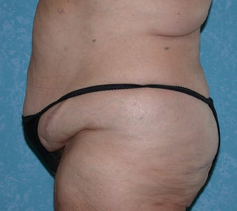 Circumferential Body Lift with Liposuction to Upper/Outer Abdomen 857738