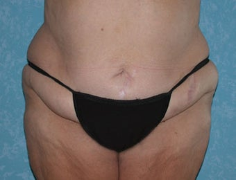 Circumferential Body Lift with Liposuction to Upper/Outer Abdomen before 857738