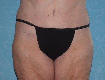 Circumferential Body Lift with Liposuction to Upper/Outer Abdomen after 857738