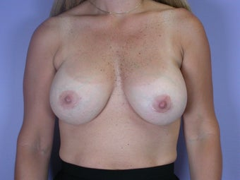 41 yr old Breast Implant Revision before 1060863