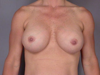 41 yr old Breast Implant Revision after 1060863