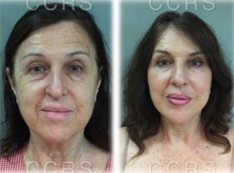 57 year old woman treated with SMAS Facelift / tip plasty