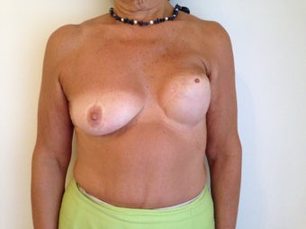 Breast Reconstruction before 1256399