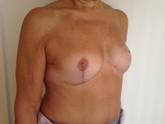 Breast Reconstruction 1256399