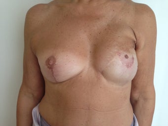 Breast Reconstruction after 1256399