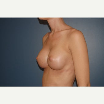 18-24 year old woman treated with Breast Augmentation