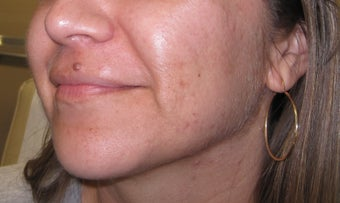 mole removal from upper lip using plastic surgery techniques 1127297