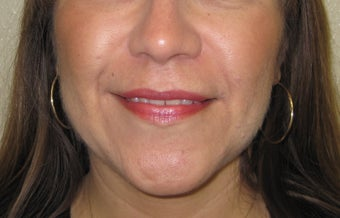 mole removal from upper lip using plastic surgery techniques after 1127297