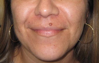 mole removal from upper lip using plastic surgery techniques before 1127297