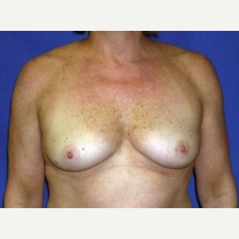 45-54 year old woman treated with Breast Augmentation before 3220139