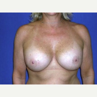 45-54 year old woman treated with Breast Augmentation after 3220139