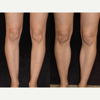 25-34 year old woman treated with Calf Implant before 3659514