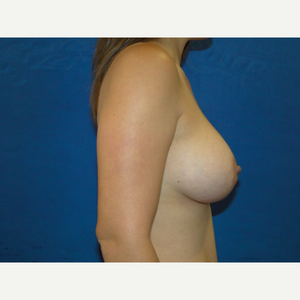 425 cc Silicone Breast Implants after 3447704