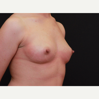 25-34 year old woman treated with Breast Augmentation before 3167735