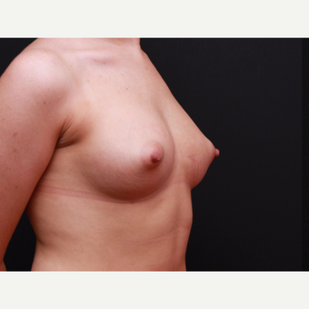 25-34 year old woman treated with Breast Augmentation after 3167735
