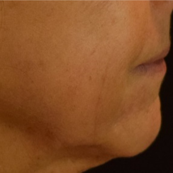 45-54 year old woman treated with Halo Laser after 3169627