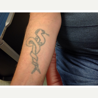 Laser Tattoo Removal using the PicoSure laster; 35-44 year old man treated with using before 3292533