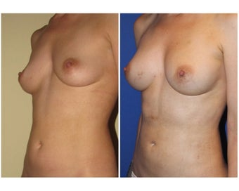 Natural Breast Augmentation before 330271