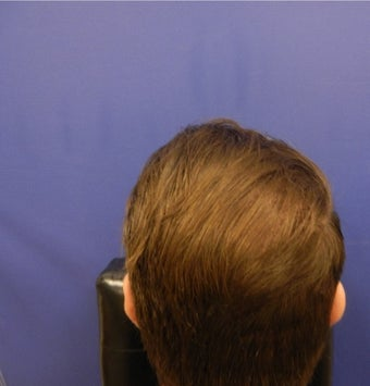 45-54 year old man treated with Hair Transplant after 3664069
