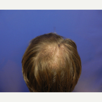 45-54 year old man treated with Hair Transplant before 3664069