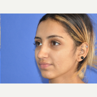 18-24 year old woman treated with Rhinoplasty after 3219747