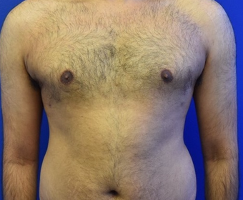 18-24 year old man treated with Laser Liposuction for Gynecomastia after 3483320