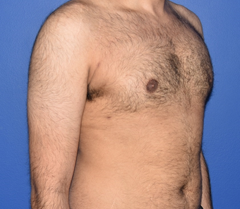 18-24 year old man treated with Laser Liposuction for Gynecomastia 3483320