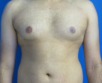 18-24 year old man treated with Laser Liposuction for Gynecomastia before 3483320
