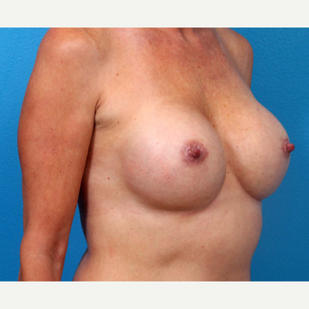 25-34 year old woman treated with Breast Implant Revision after 3371241