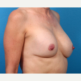 25-34 year old woman treated with Breast Implant Revision before 3371241