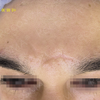 36 year old, scar treatment with RecoSMA after 3499196