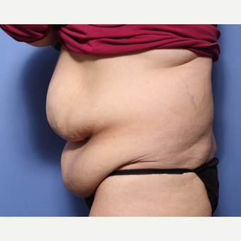 45-54 year old woman treated with Tummy Tuck before 3505876