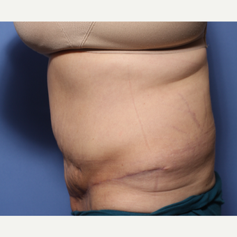 45-54 year old woman treated with Tummy Tuck after 3505876