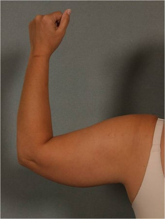 43 Year Old Female with skin laxity and excess heaviness upper arms