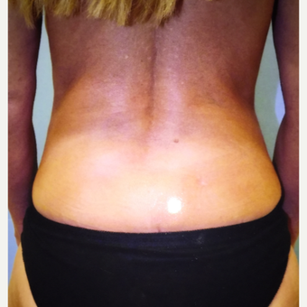 35-44 year old woman treated with Liposuction after 3333450