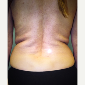 35-44 year old woman treated with Liposuction before 3333450