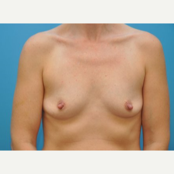 35-44 year old woman treated with Breast Augmentation before 3493287