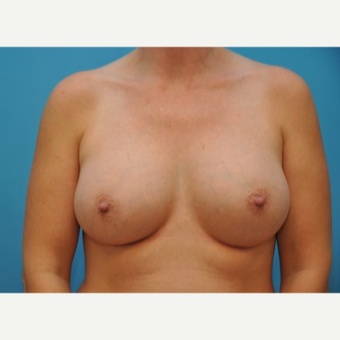 35-44 year old woman treated with Breast Augmentation after 3493287