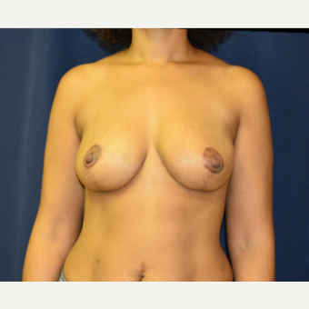 35-44 year old woman treated with Breast Lift and small reduction after 3804257