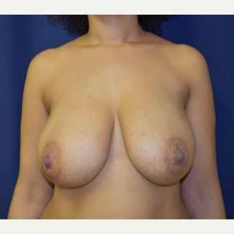 35-44 year old woman treated with Breast Lift and small reduction before 3804257