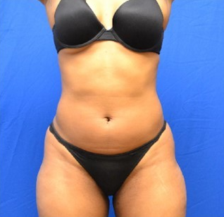 35 year old femal treated with  SmartLipo to the abdomen and waist before 1508926